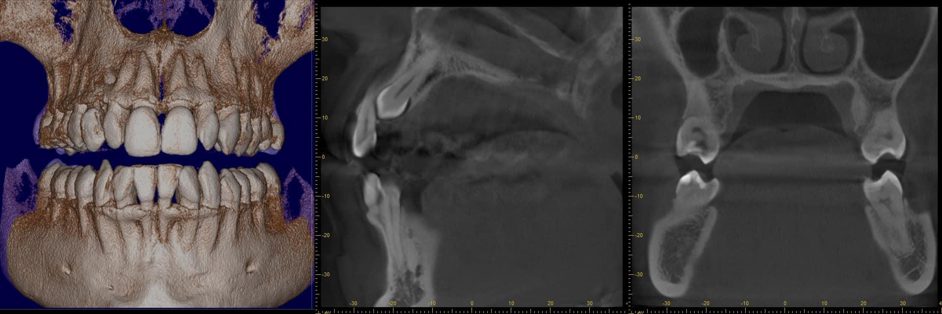 3d röntgen zahnarzt