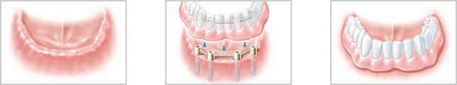 implantat zahn